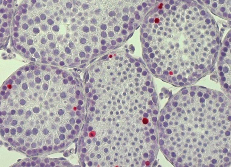Coupe de de testicule de souris avec détection des cellules en apoptose (mort cellulaire) par méthode TUNEL